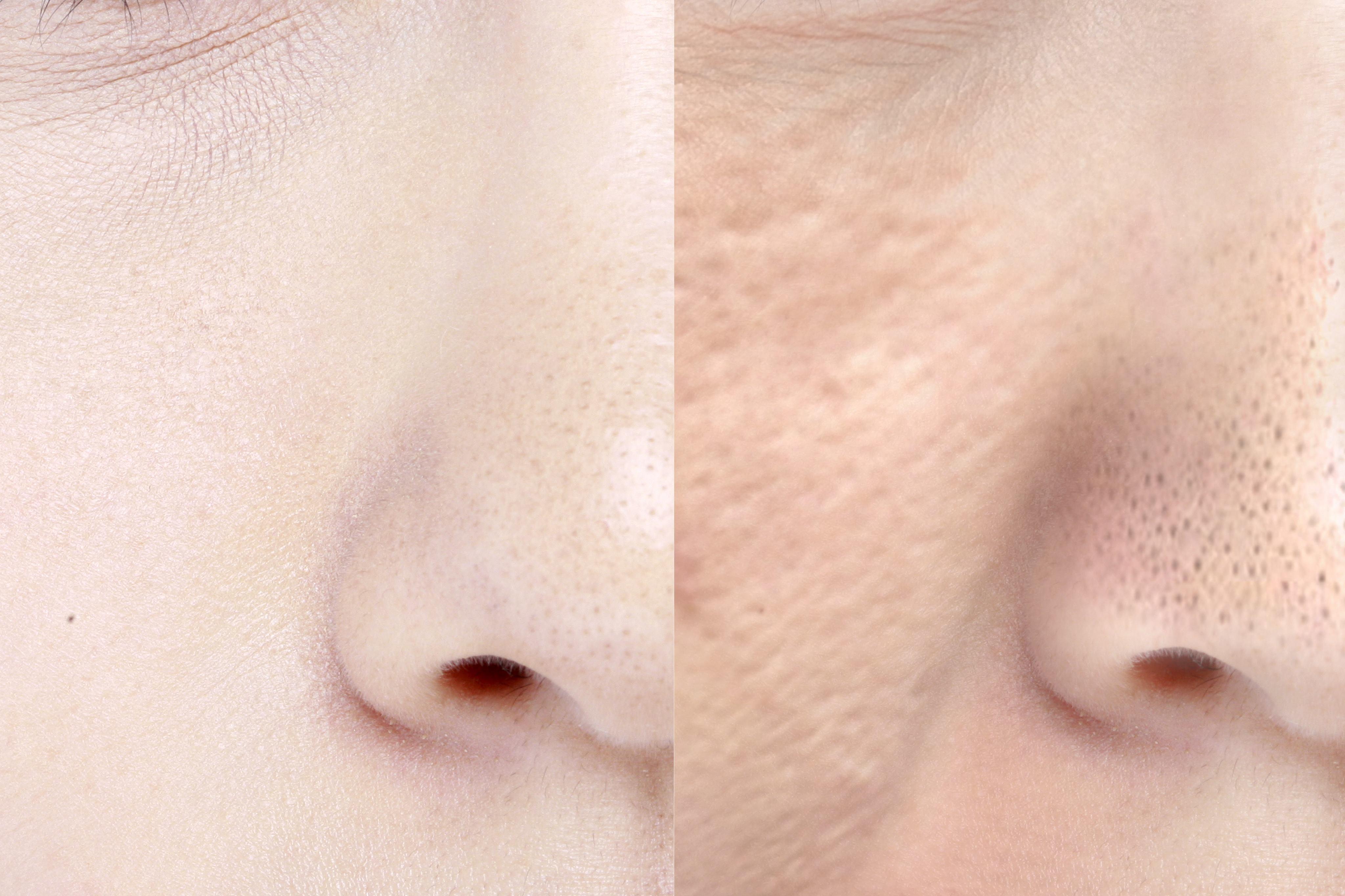 Unterschiedliche Poren im Vergleich.